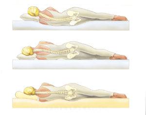 Дискомфорт и болки в областта на гърба и кръста.Безсъние и..