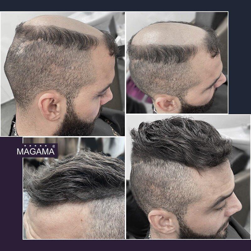Модерна визия за мъжете с плешивост и оредяла коса от Магама