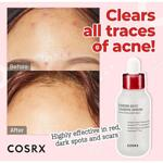COSRX AC Collection Blemish Spot Clearing Serum, 40 ml