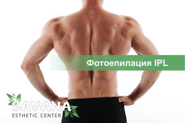 Фотоепилация IPL на гръб + кръст за мъже