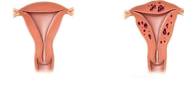 Аденомиоза