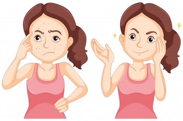 11 натурални съставки, които ще ви помогнат да се преборите с акнето