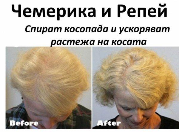 Чемерика и репей – билките, които спират косопада и ускоряват растежа на косата