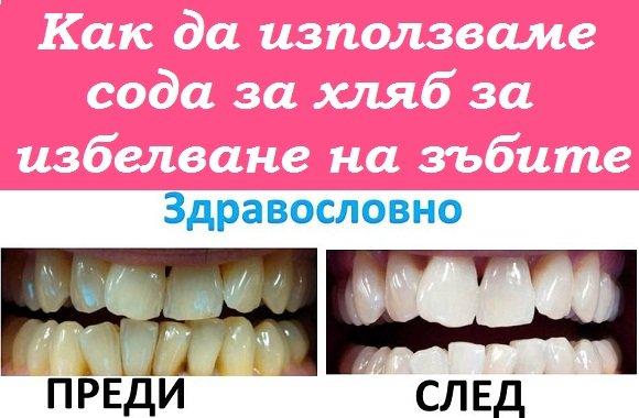 Как да използваме правилно сода за хляб за избелване на зъбите