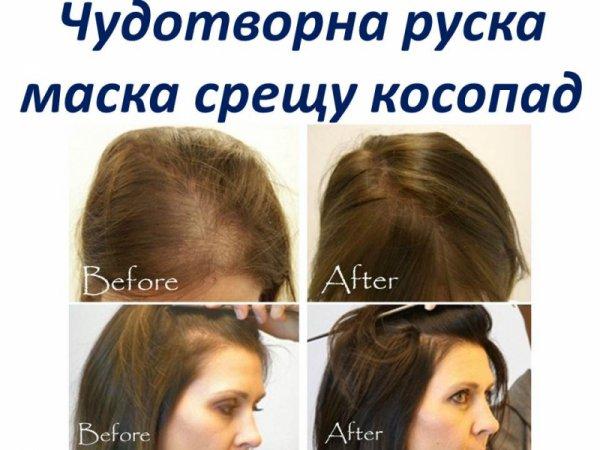 Чудотворна руска рецепта срещу косопад