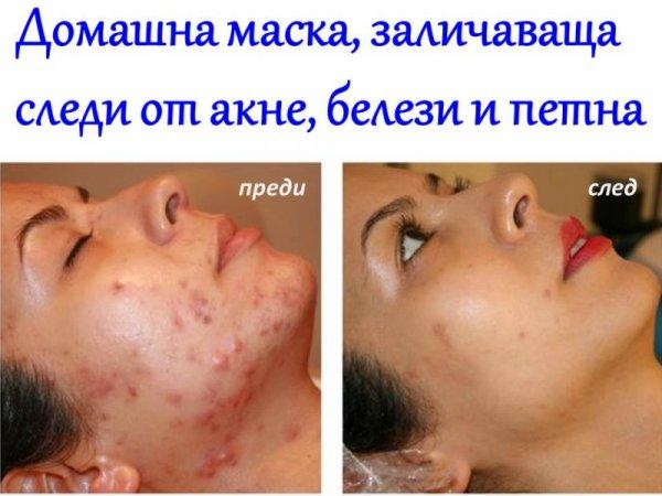На борба с акнето - домашна избелваща маска за лице