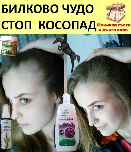 Билково чудо срещу косопад - шампоан+маска+лосион