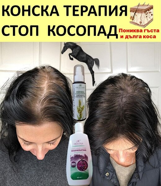КОНСКА ТЕРАПИЯ  СТОП КОСОПАД С БИЛКИ– билково лечение на косопад